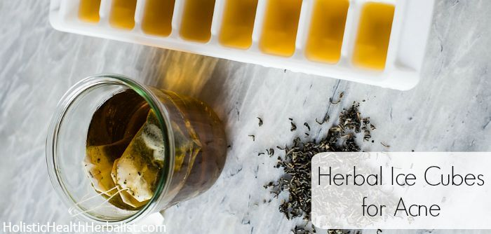 DIY Herbal Ice Cubes for Acne