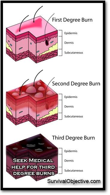 sunburn levels