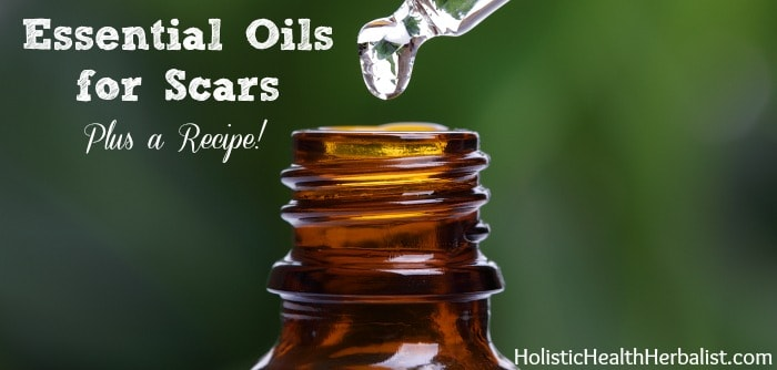 Essential Oils for Scars and a scar serum recipe