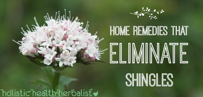 Easy home remedies that eliminate shingles and ease symptoms.