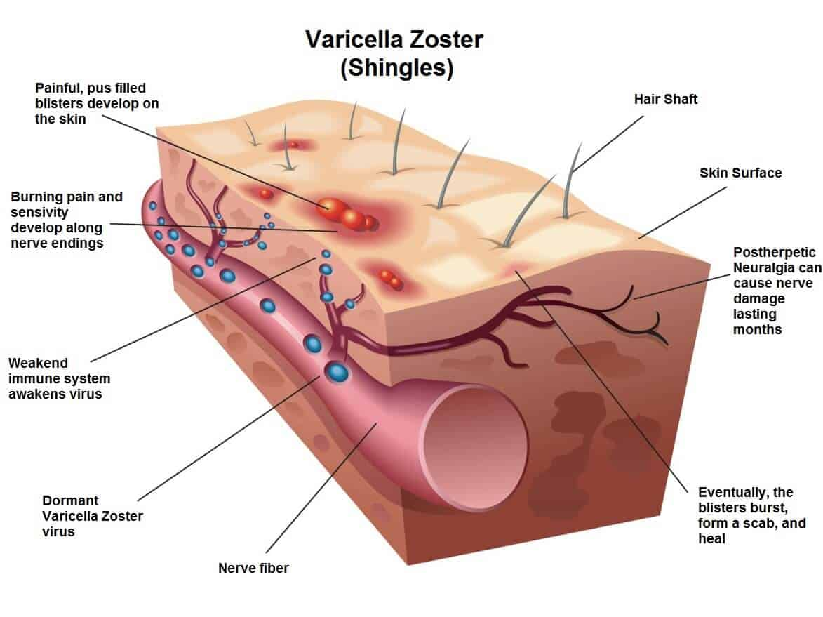 The shingles virus is caused by the varicella-zoster virus, the same virus that causes the chicken pox.